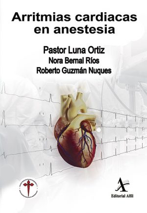 Arritmias cardiacas en anestesia